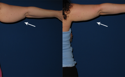 3 - After Lipo Arms - Female 37.png