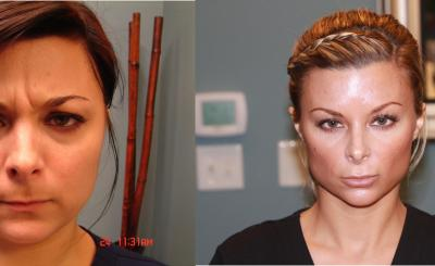 Skin before after 1.jpg